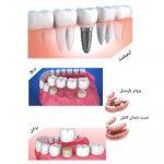 مقایسه ایمپلنت های دندانی و دیگر جایگزین های دندان
